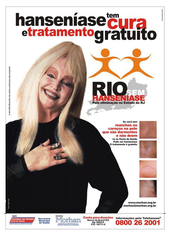 Elke Maravilha  em cartaz da campanha de combate à hanseníase no Rio de Janeiro