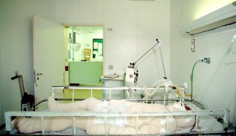 <strong> &nbsp;O &iacute;ndio Galdino Jesus dos Santos</strong> hospitalizado em Bras&iacute;lia; com 95% do corpo queimado, o patax&oacute; morreu no dia seguinte  &nbsp;